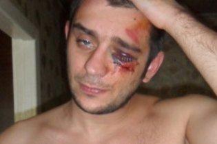 Побитий міліцією донецький журналіст заявив про провокацію