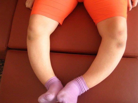 почему болят и опухают ноги