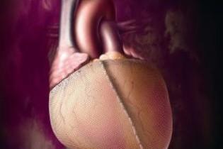 На Закарпатье впервые вживили дефибрилятор в сердце (видео)